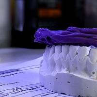 Типове Dental Implants Bulgaria 11